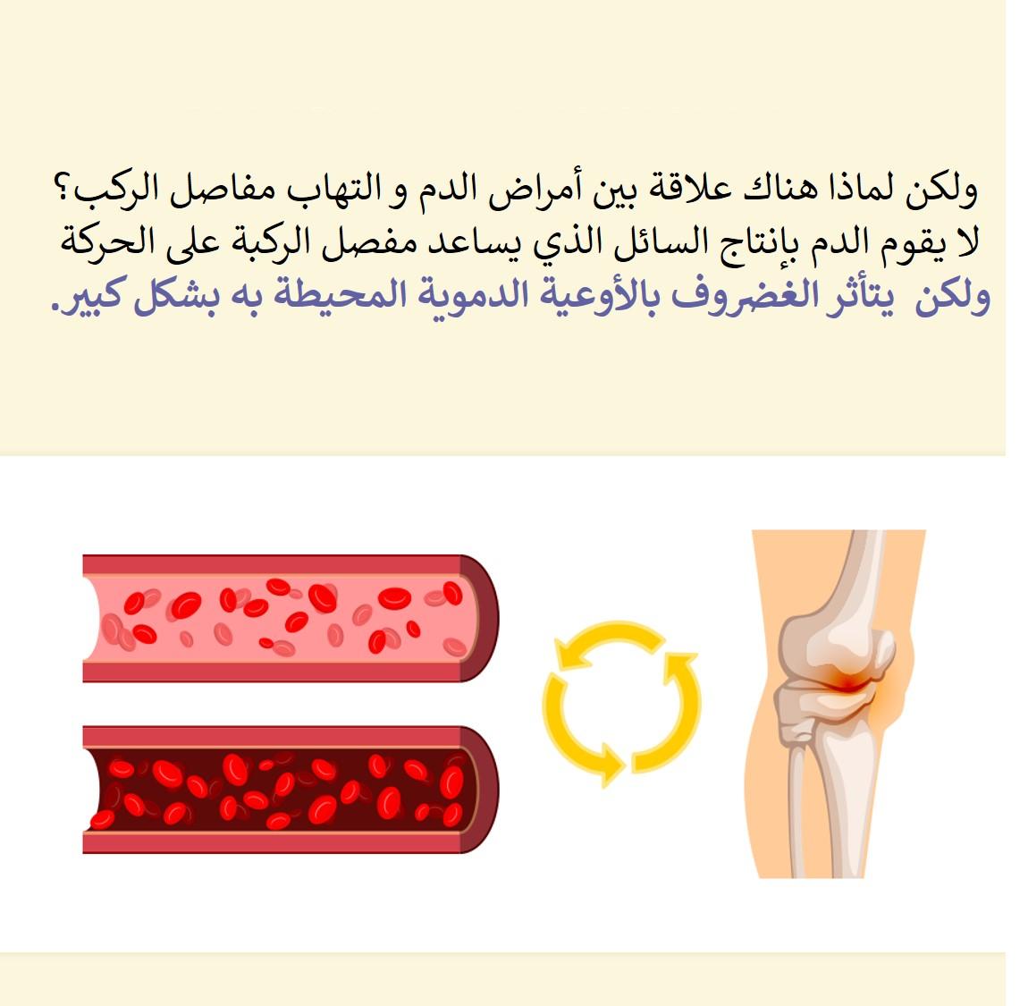 علاقة أمراض الدم بالمفاصل